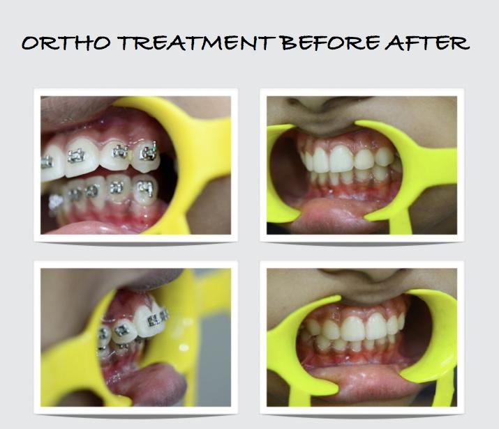 orthodontic treatment in mumbai