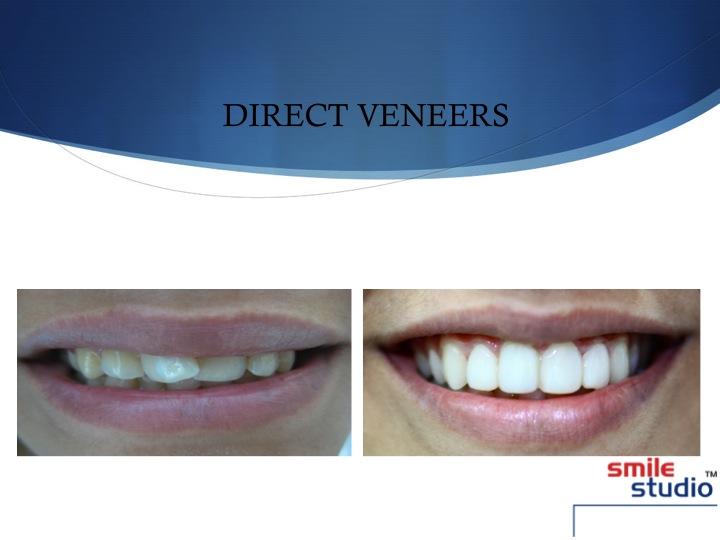 DENTAL VENEERS- smile studio
