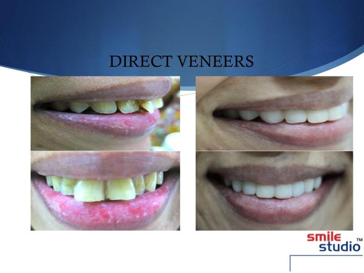 DENTAL VENEERS smile studio