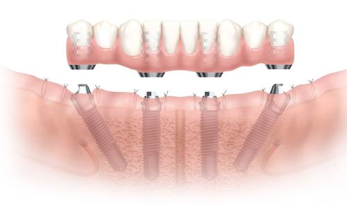 dental implant in pune- smile studio