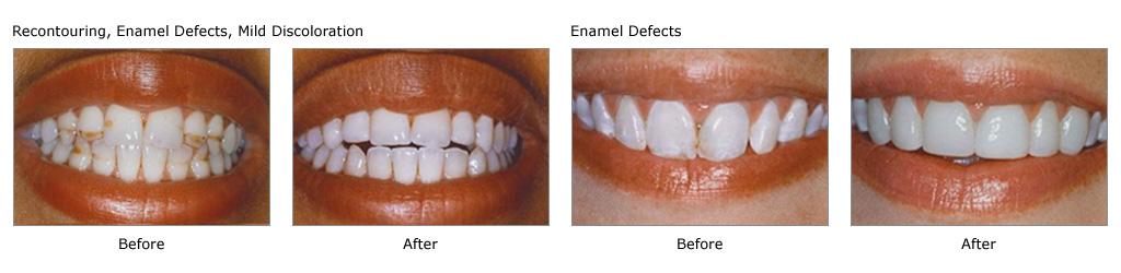 teeth whitening treatment mumbai - smile studio