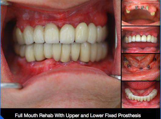 Full Mouth Reconstruction- SMILE DESIGN STUDIO