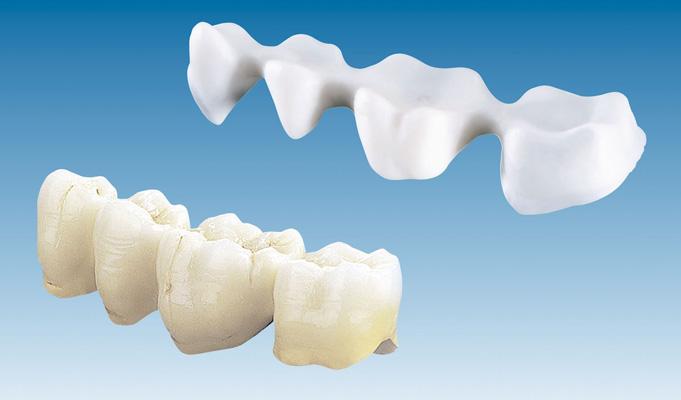 dental bridges in mumbai