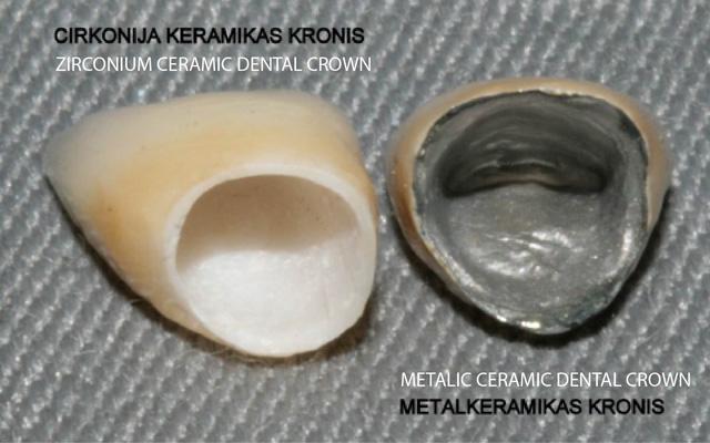 ceramic crown -Smile studio