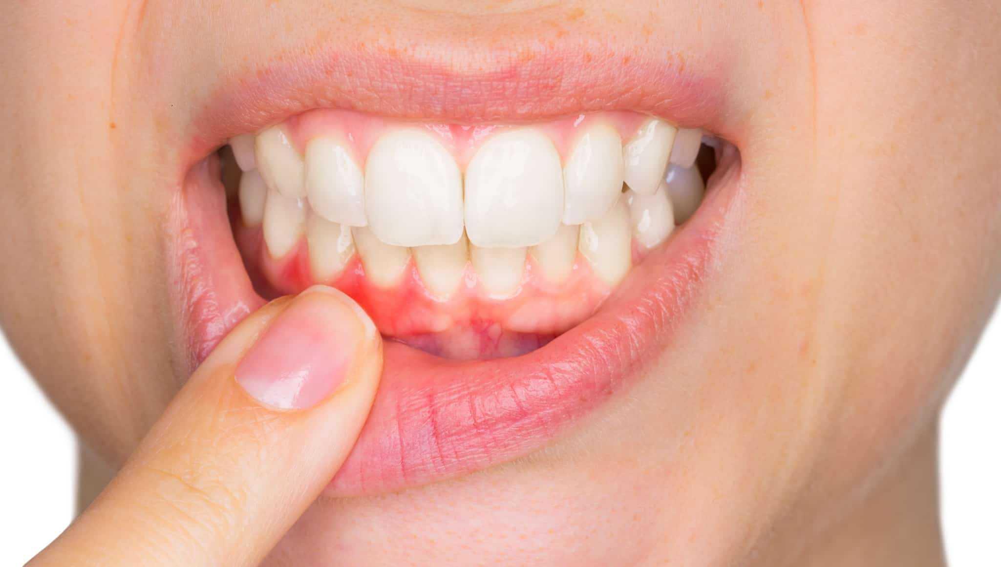 gum surgery in mumbai