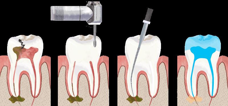 root canal treatment in mumbai