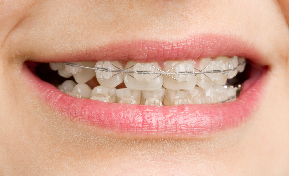 braces specialist in pune