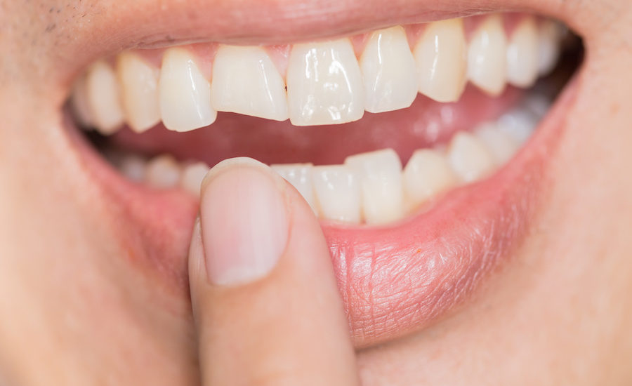 chipped tooth treatment in mumbai