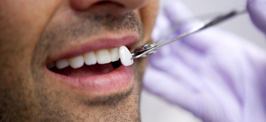 dental veeners in Mumbai