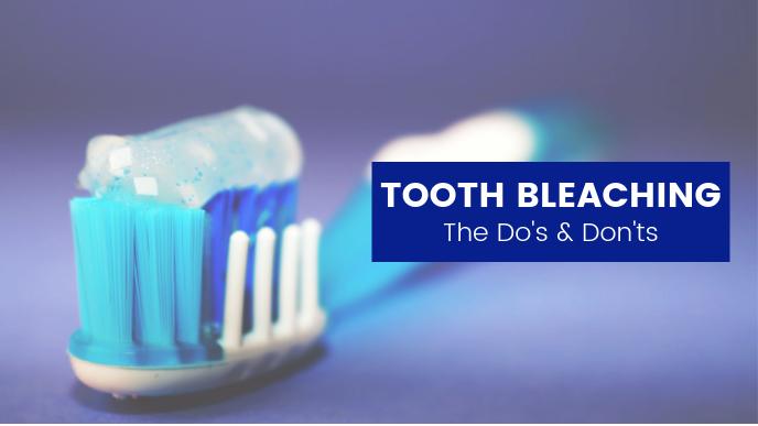 Teeth Bleaching Tooth Bleaching