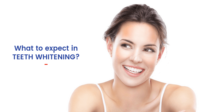 What to expect in teeth whitening - Smile Studio
