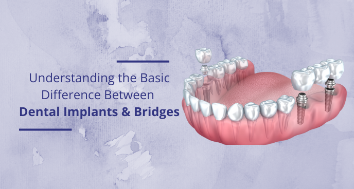 Understanding the Basic difference between Dental Implants and bridges