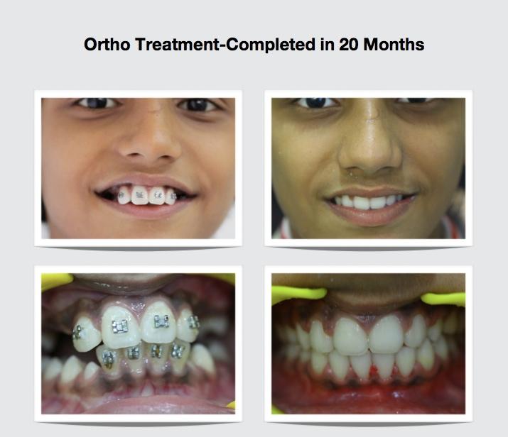 orthodontic treatment in mumbai- smile studio