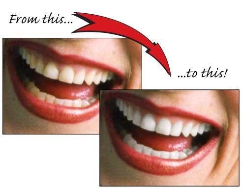 teeth whitening treatment in mumbai- smile studio