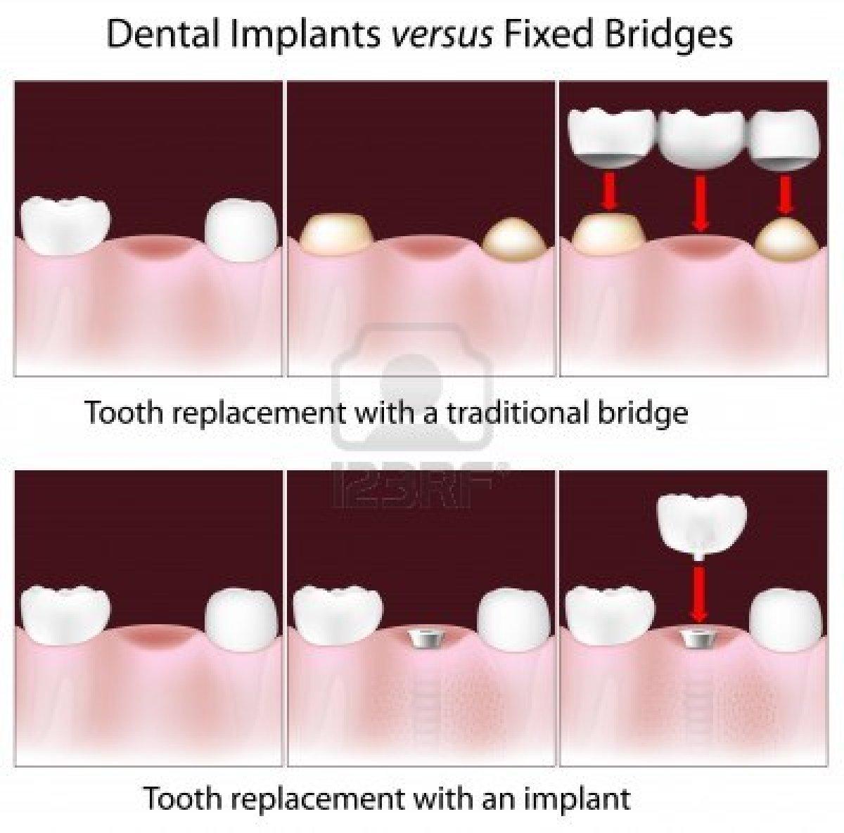 dental implant treatment in mumbai- smile studio