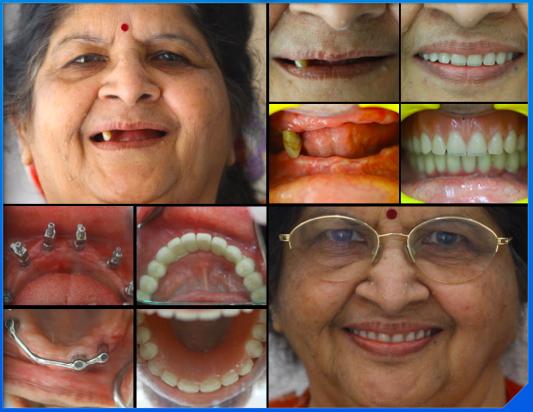 dental implant Full Mouth Reconstruction - SMILE DESIGN STUDIO