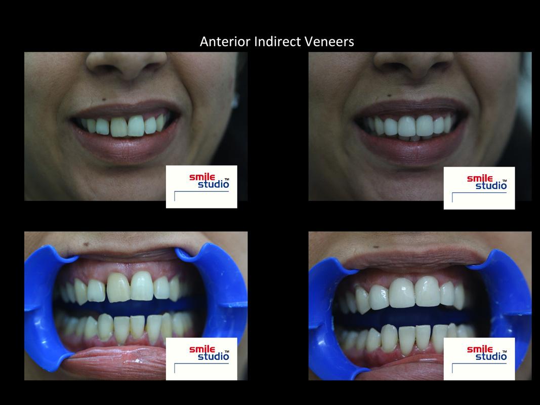 dental veeners in mumbai -Smile studio